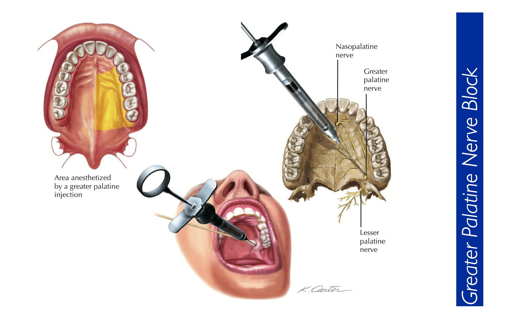 Local anesthetic injection techniques pdf
